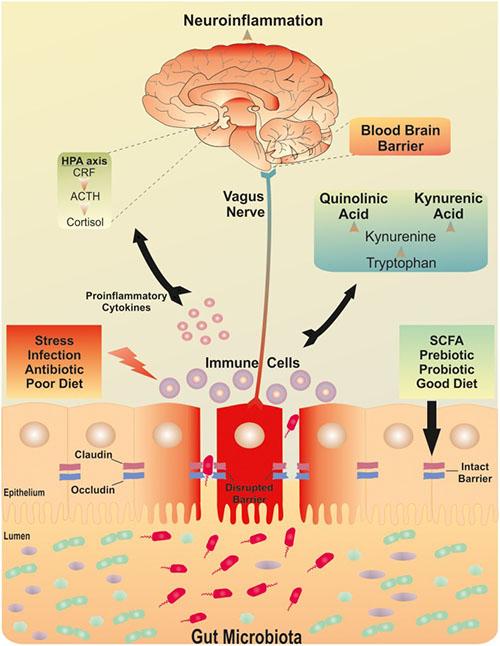 Digestive inflammation